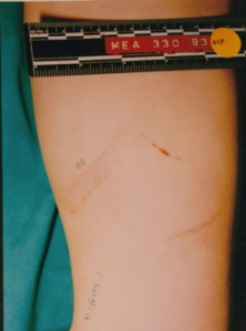 Mark on Stevie's leg, possibly made by edge of the board found at crime scene